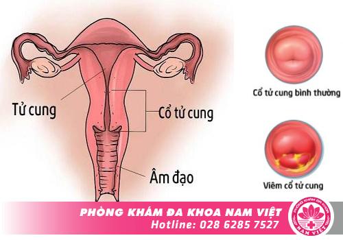Hình ảnh về cổ tử cung bị viêm nhiễm