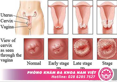 Dấu hiệu phì đại cổ tử cung dễ nhầm lẫn với một số bệnh phụ khoa khác