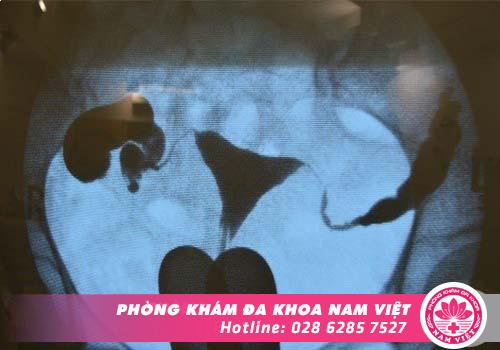 Chụp Xquang hoặc siêu âm tử cung để tầm soát bệnh về ống dẫn trứng