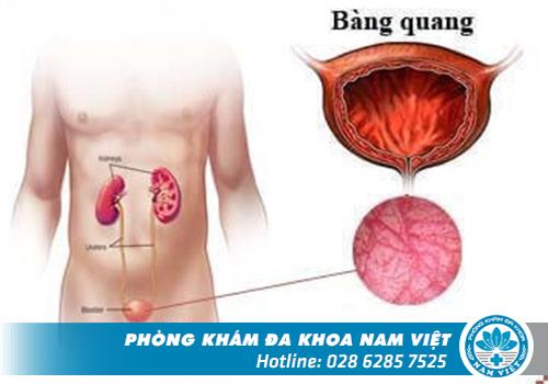 Bệnh Viêm Bàng Quang Có Nguy Hiểm Không?