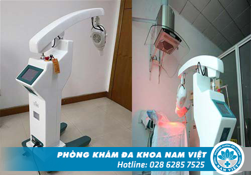 Máy ALA-PDT điều trị sùi mào gà tại Đa Khoa Nam Việt