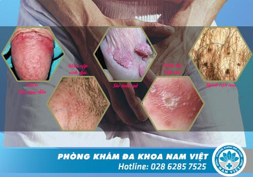 Nguyên nhân bệnh lý dẫn đến bị ngứa vùng kín ở nam giới