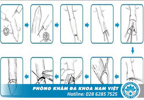 Quy trình cắt bao quy đầu thẩm mỹ, không đau tại Đa Khoa Nam Việt