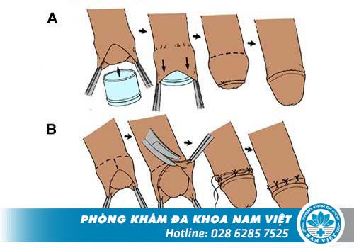 Quy trình cắt bao quy đầu tại Đa Khoa Nam Việt