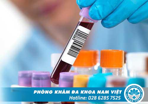 Các phương pháp xét nghiệm bệnh lậu