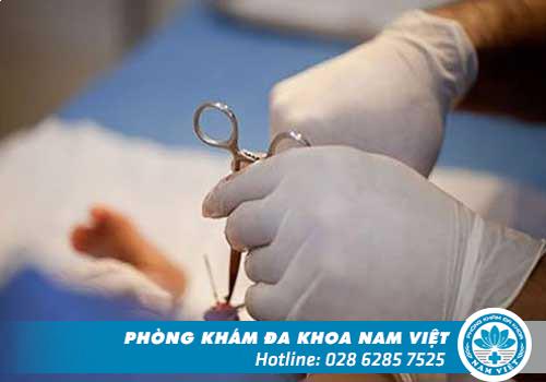 Phẫu thuật hẹp bao quy đầu bằng phương pháp nào hiệu quả nhất?
