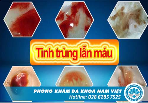 Trinh trùng vón cục, tinh trùng lẫn máu, tinh trùng màu xanh... là những dấu hiệu bất thường cần chữa gấp