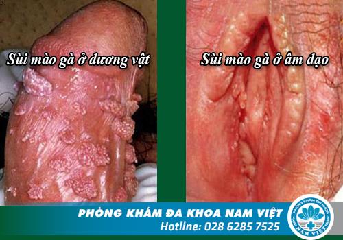triệu chứng và hình ảnh bệnh sùi mào gà