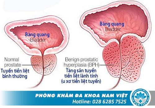 Hình ảnh về u xơ tuyến tiền liệt