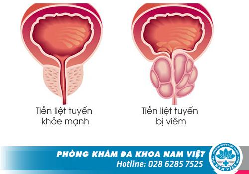 Hình ảnh về viêm tuyến tiền liệt ở nam giới