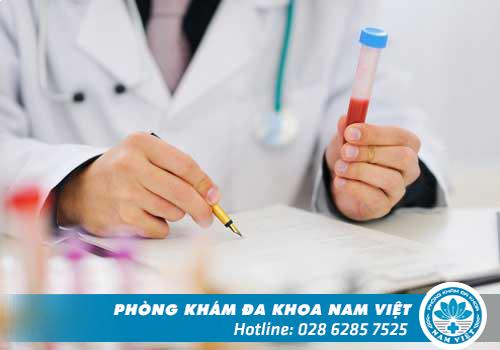 Xét nghiệm virus HPV có tốn kém chi phí không?